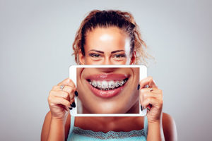 A woman holds a picture of a smile with braces in TX in front of her mouth